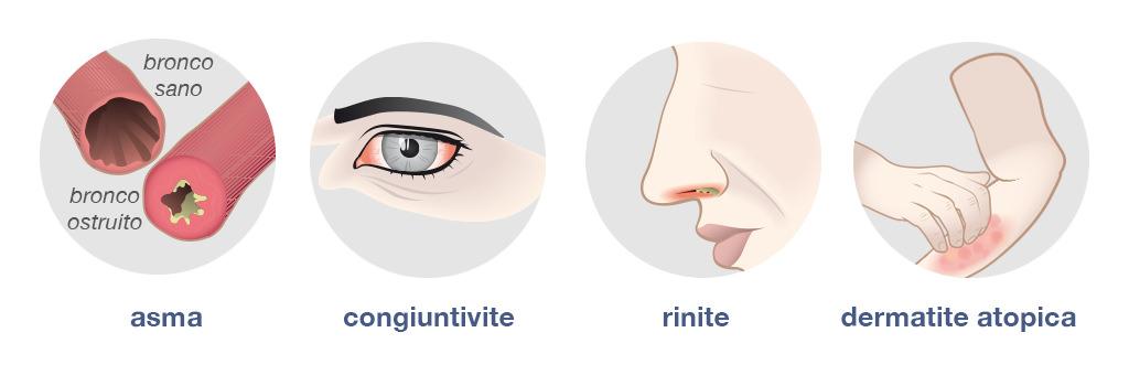 INFO-sintomi